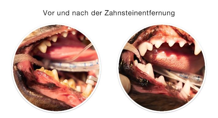 Zahnsteinentfernung vorher / nachher